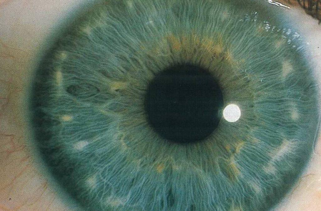 La Pupilla